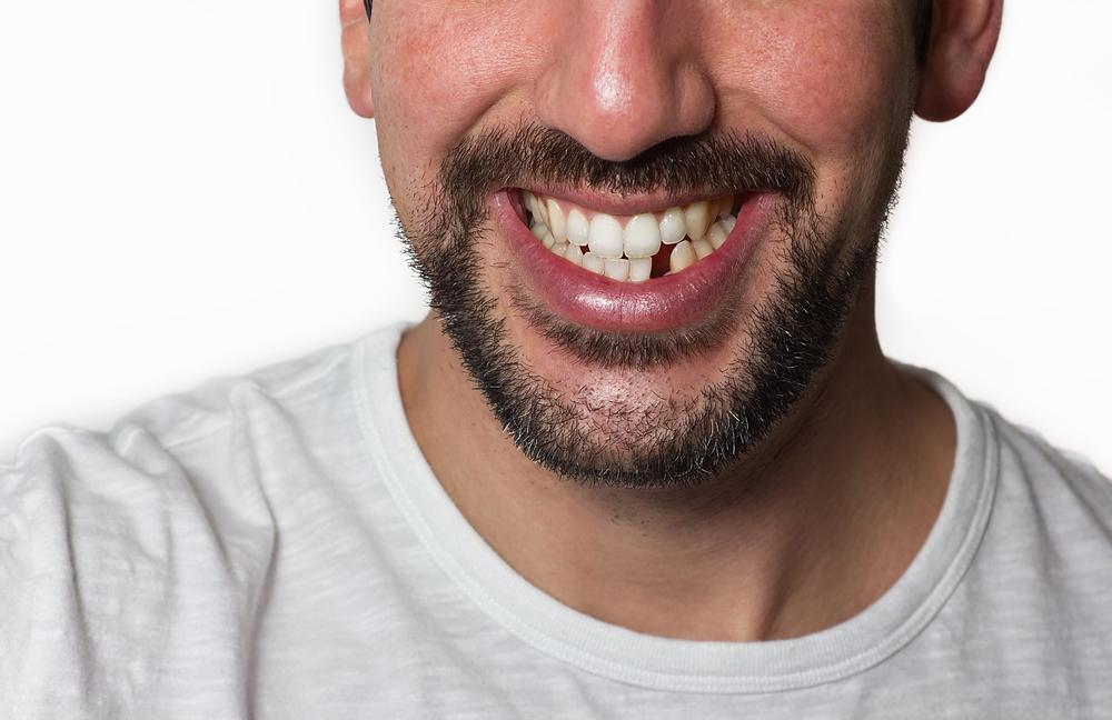 歯が汚い男