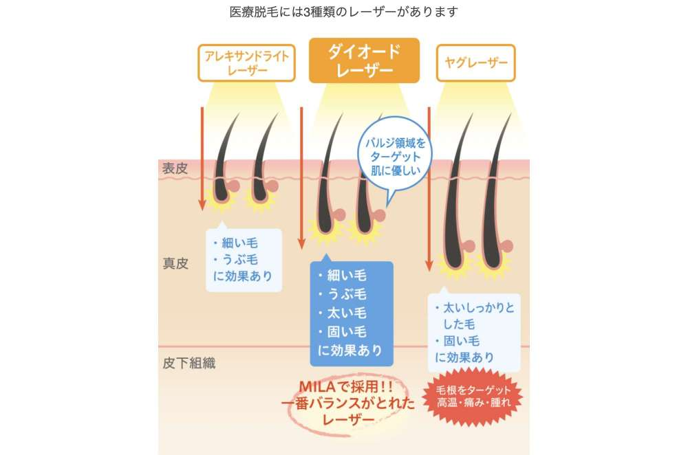 3種のレーザー